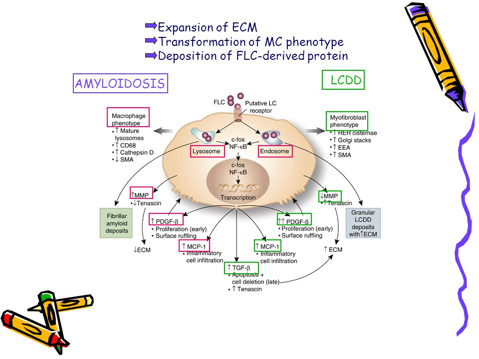 Expansion of ECM Transformation of MC phenotype Deposition of FLC-derived protein AMYLOIDOSIS LCDD