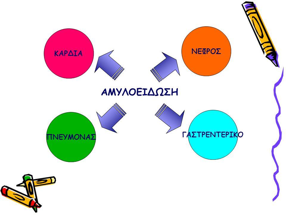 Οι αμυλοειδώσεις αποτελούν μια ομάδα ασθενειών στις οποίες πρωτείνες εναποτίθενται εξωκυττάρια στους ιστούς με τη μορφή αδιάλυτων ινιδίων Η νεφρική συμμετοχή είναι πολύ συχνή στη συστηματική αμυλοείδωση Χωρίς θεραπεία η νεφρική αμυλοείδωση καταλήγει σε τελικό στάδιο ΧΝΝ Η νεφρική αμυλοείδωση αποτελεί ένα πολύ συχνό αίτιο νοσηρότητας και θνησιμότητας στους ασθενείς αυτούς Εμφανίζεται με συχνότητα 5-12 περιστατικά/εκατομμύριο/χρόνο Εμφανίζεται στο 30% των ασθενών με ΠΜ & αντίστροφα Το ΠΜ εμφανίζεται στο 20% των ασθενών με αμυλοείδωση