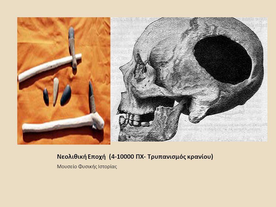 Νεολιθική Εποχή (4-10000 ΠΧ- Τρυπανισμός κρανίου) Μουσείο Φυσικής Ιστορίας