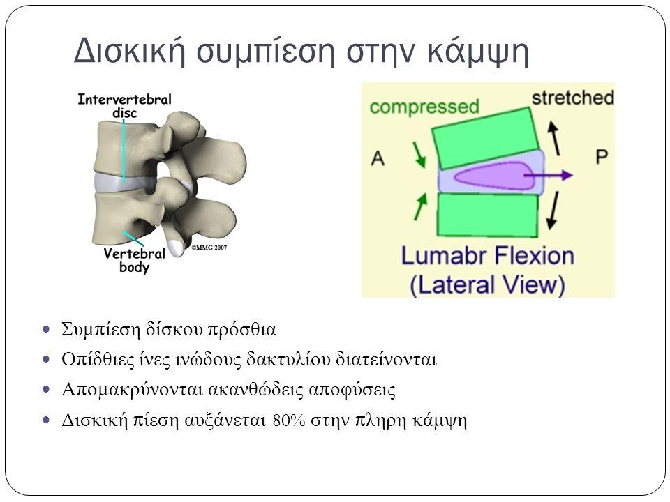 Δισκική συμπίεση στην κάμψη Συμ π ίεση δίσκου π ρόσθια Ο π ίδθιες ίνες ινώδους δακτυλίου διατείνονται Α π ομακρύνονται ακανθώδεις α π οφύσεις Δισκική