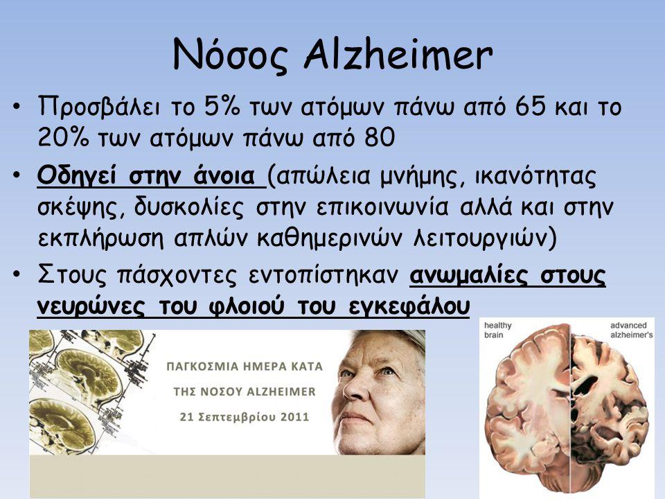 Nόσος Alzheimer Προσβάλει το 5% των ατόμων πάνω από 65 και το 20% των ατόμων πάνω από 80 Οδηγεί στην άνοια (απώλεια μνήμης, ικανότητας σκέψης, δυσκολίες στην επικοινωνία αλλά και στην εκπλήρωση απλών καθημερινών λειτουργιών) Στους πάσχοντες εντοπίστηκαν ανωμαλίες στους νευρώνες του φλοιού του εγκεφάλου