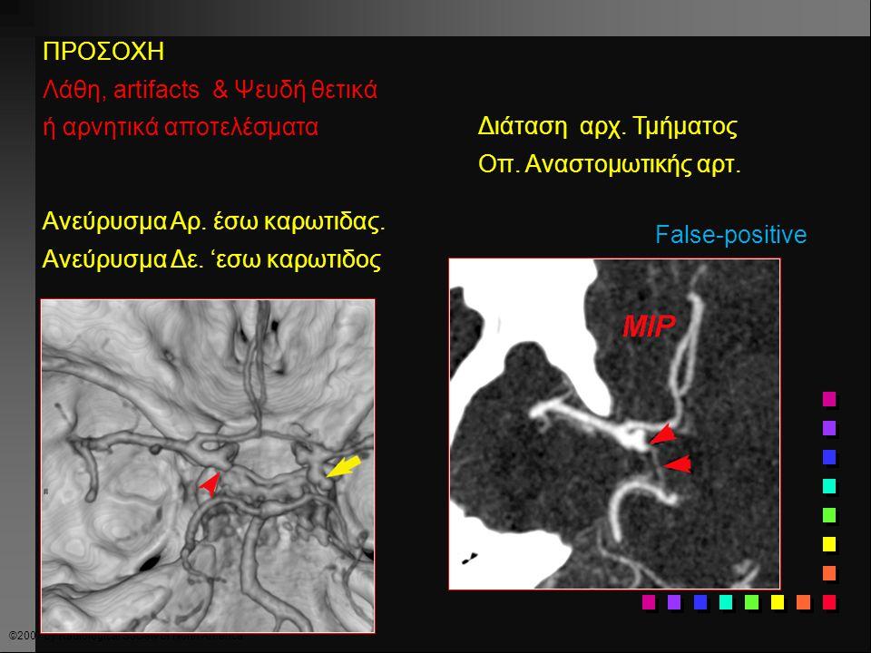 ©2007 by Radiological Society of North America ΠΡΟΣΟΧΗ Λάθη, artifacts & Ψευδή θετικά ή αρνητικά αποτελέσματα Ψευδές αρνητικό CTA