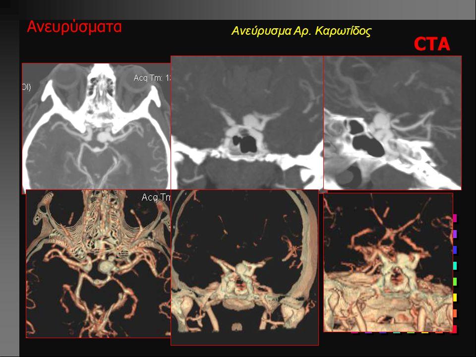 Ανεύρυσμα Αρ. Καρωτίδος Ανευρύσματα Ce-MRA Ανεύρυσμα ΔΕ ICA ( υπερκλινοειδούς μοίρας)