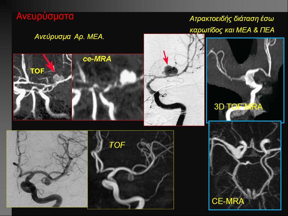 Ανευρύσματα Ανεύρυσμα Αρ. ΜΕΑ. TOF Ατρακτοειδής διάταση έσω καρωτίδος και ΜΕΑ & ΠΕΑ TOF 3D TOF MRA CE-MRA