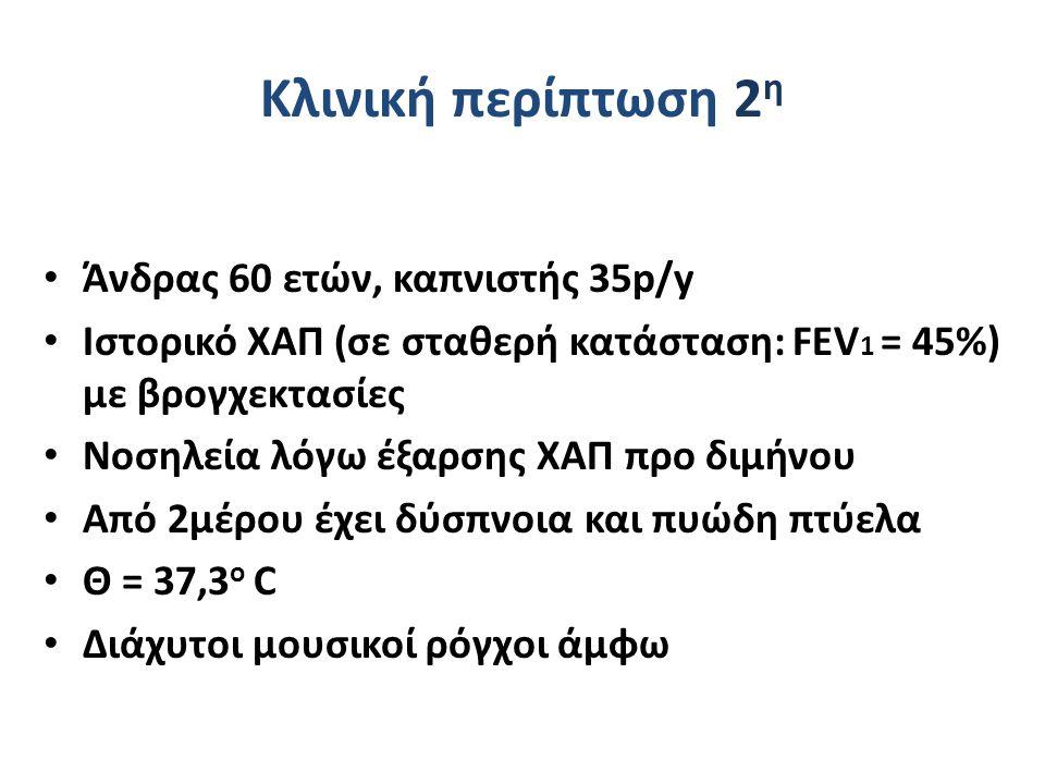 Κλινική περίπτωση 2 η Άνδρας 60 ετών, καπνιστής 35p/y Ιστορικό ΧΑΠ (σε σταθερή κατάσταση: FEV 1 = 45%) με βρογχεκτασίες Νοσηλεία λόγω έξαρσης ΧΑΠ προ διμήνου Από 2μέρου έχει δύσπνοια και πυώδη πτύελα Θ = 37,3 ο C Διάχυτοι μουσικοί ρόγχοι άμφω