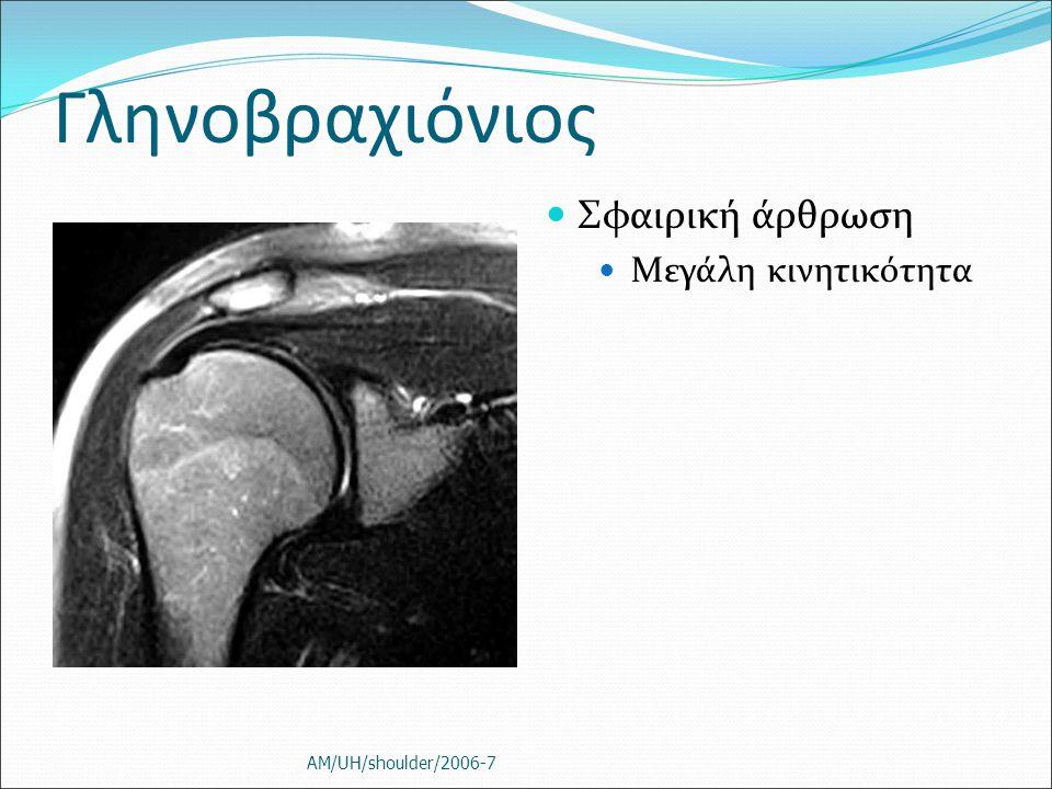 Γληνοβραχιόνιος Σφαιρική άρθρωση Μεγάλη κινητικότητα AM/UH/shoulder/2006-7