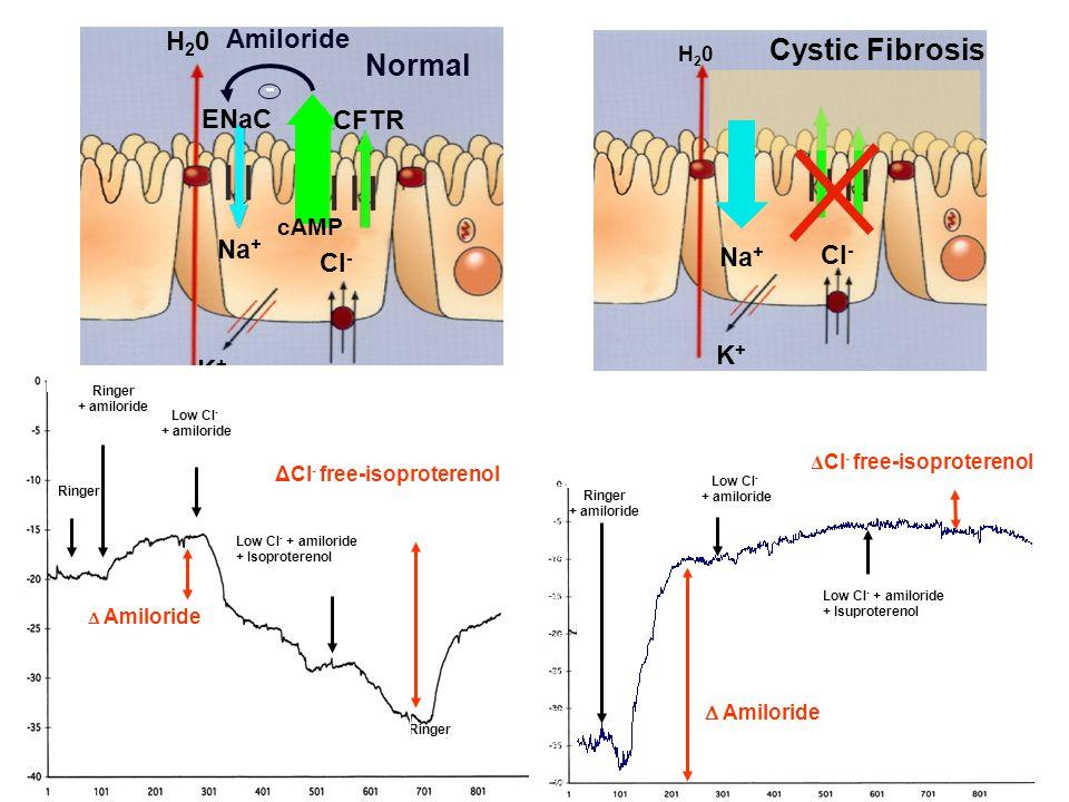 Cl - Na + H20H20 K+K+ CFTR ENaC - Amiloride cAMP Normal Cl - Na + H20H20 K+K+ Cystic Fibrosis Ringer Low Cl - + amiloride Low Cl - + amiloride + Isoproterenol Ringer ΔCl - free-isoproterenol  Amiloride Ringer + amiloride Ringer Ringer + amiloride 100 µM Low Cl - + amiloride 100µM Low Cl - + amiloride 100µM + Isuprel 10 µM Ringer Ringer + amiloride Low Cl - + amiloride + Isuproterenol -70 -60 -55 -50 -45 -40 -30 -25 -35  Amiloride Δ Cl - free-isoproterenol Low Cl - + amiloride