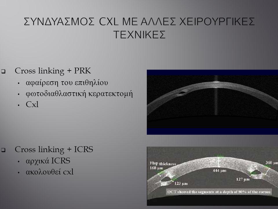  Cross linking + PRK αφαίρεση του επιθηλίου φωτοδιαθλαστική κερατεκτομή Cxl  Cross linking + ICRS αρχικά ICRS ακολουθεί cxl