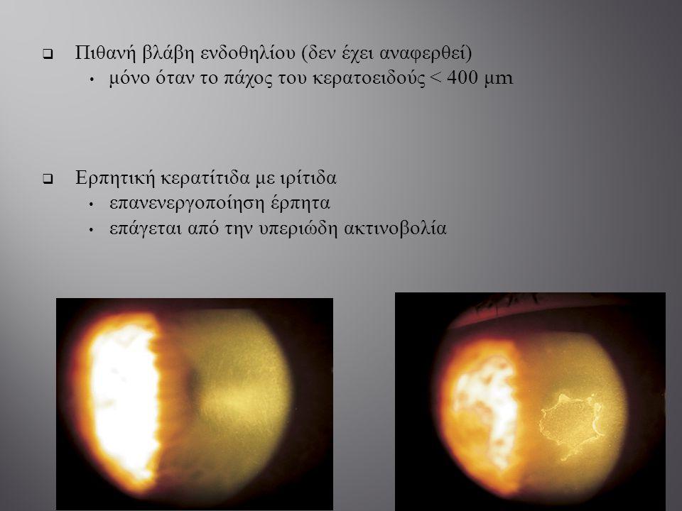  Πιθανή βλάβη ενδοθηλίου ( δεν έχει αναφερθεί ) μόνο όταν το πάχος του κερατοειδούς < 400 μ m  Ερπητική κερατίτιδα με ιρίτιδα επανενεργοποίηση έρπητ