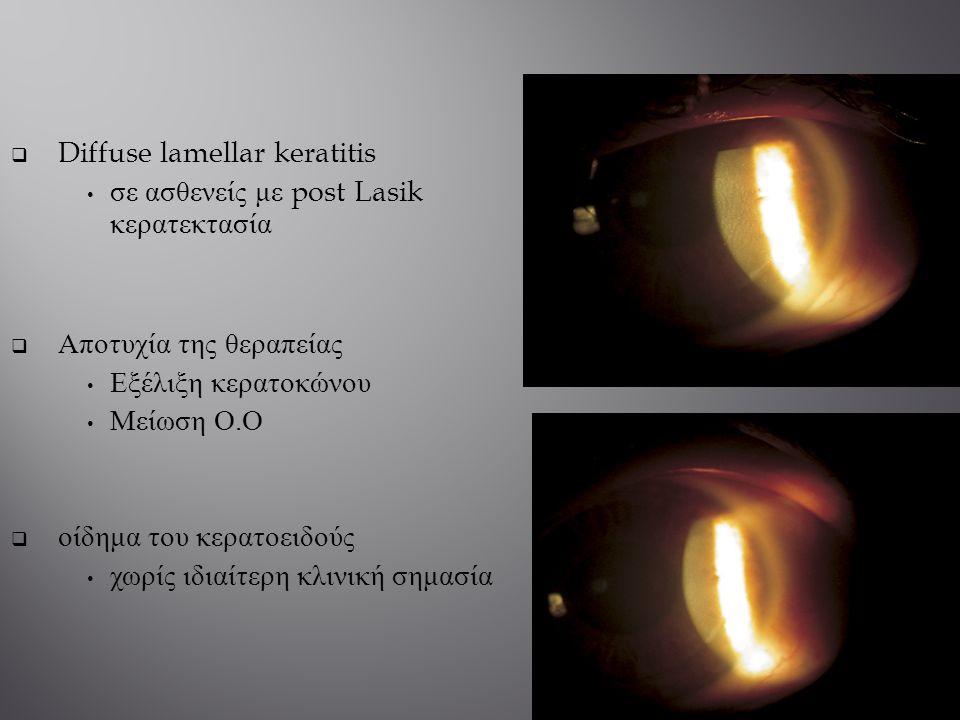  Diffuse lamellar keratitis σε ασθενείς με post Lasik κερατεκτασία  Αποτυχία της θεραπείας Εξέλιξη κερατοκώνου Μείωση Ο. Ο  οίδημα του κερατοειδούς