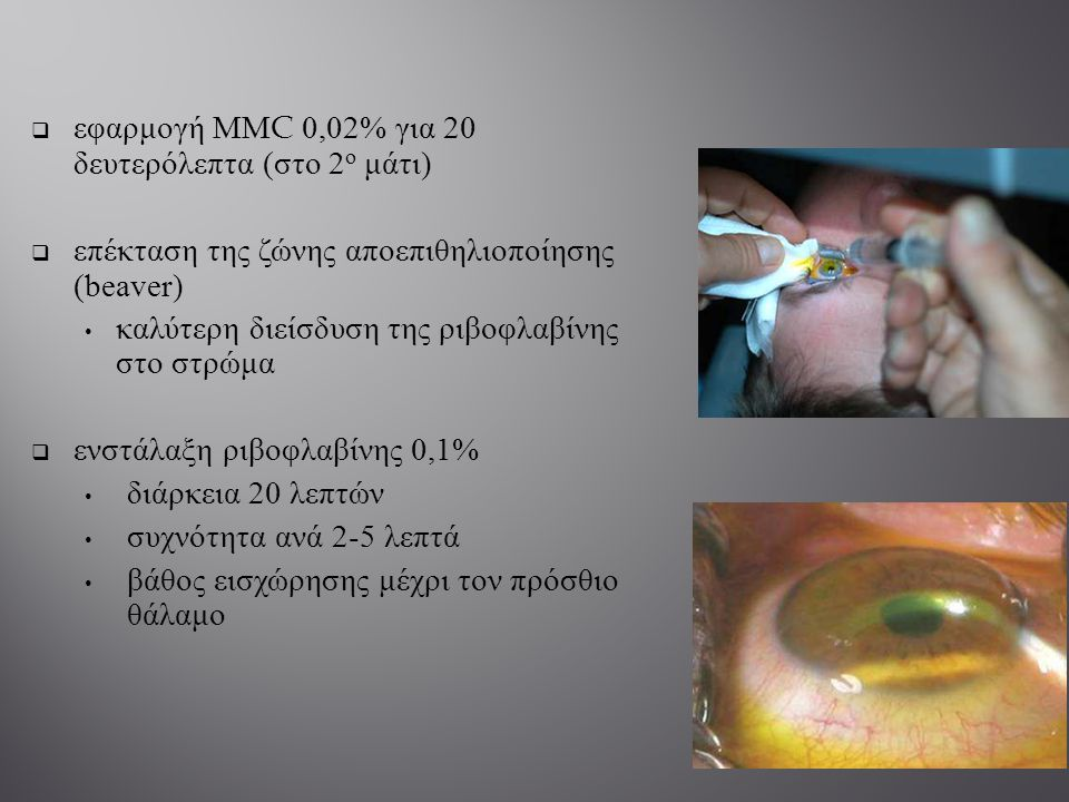 εφαρμογή ΜΜ C 0,0 2 % για 20 δευτερόλεπτα ( στο 2 ο μάτι )  επέκταση της ζώνης αποεπιθηλιοποίησης (beaver) καλύτερη διείσδυση της ριβοφλαβίνης στο