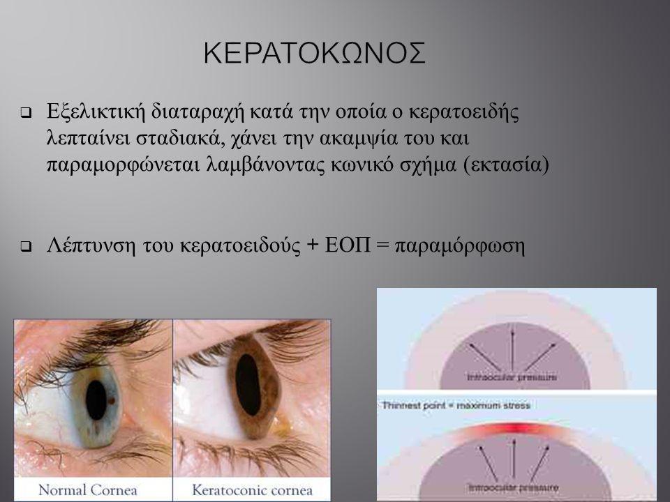  Εξελικτική διαταραχή κατά την οποία ο κερατοειδής λεπταίνει σταδιακά, χάνει την ακαμψία του και παραμορφώνεται λαμβάνοντας κωνικό σχήμα ( εκτασία )