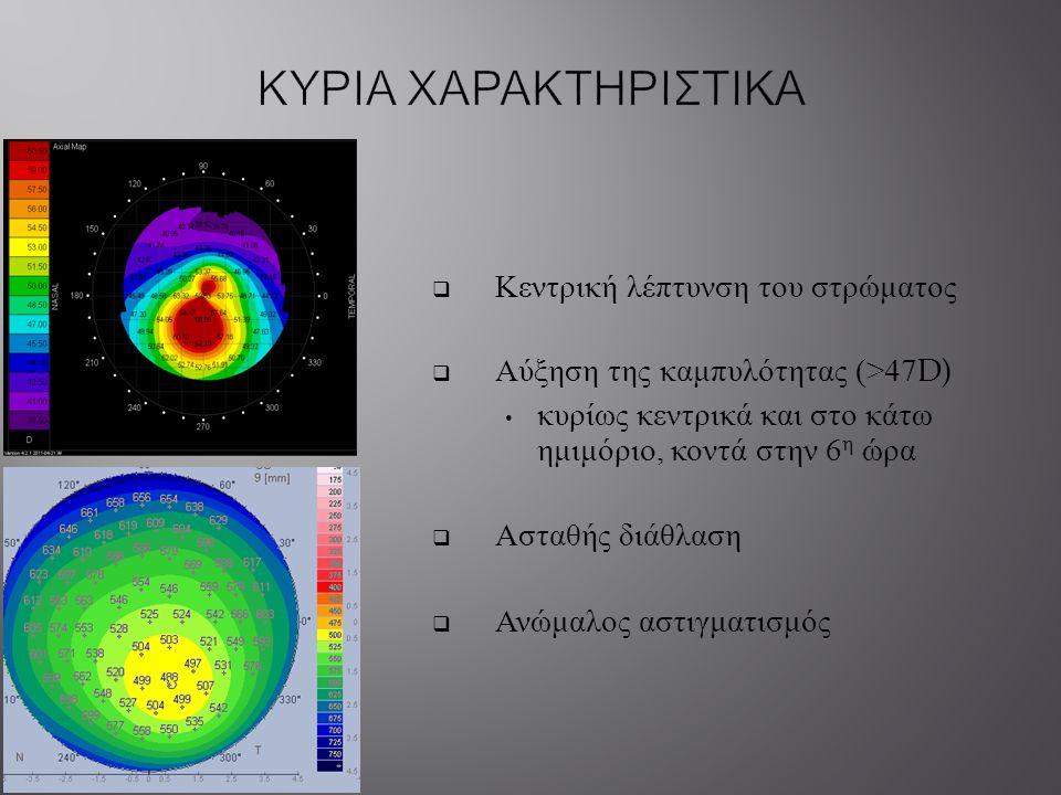  Κεντρική λέπτυνση του στρώματος  Αύξηση της καμπυλότητας (>47D) κυρίως κεντρικά και στο κάτω ημιμόριο, κοντά στην 6 η ώρα  Ασταθής διάθλαση  Ανώμ