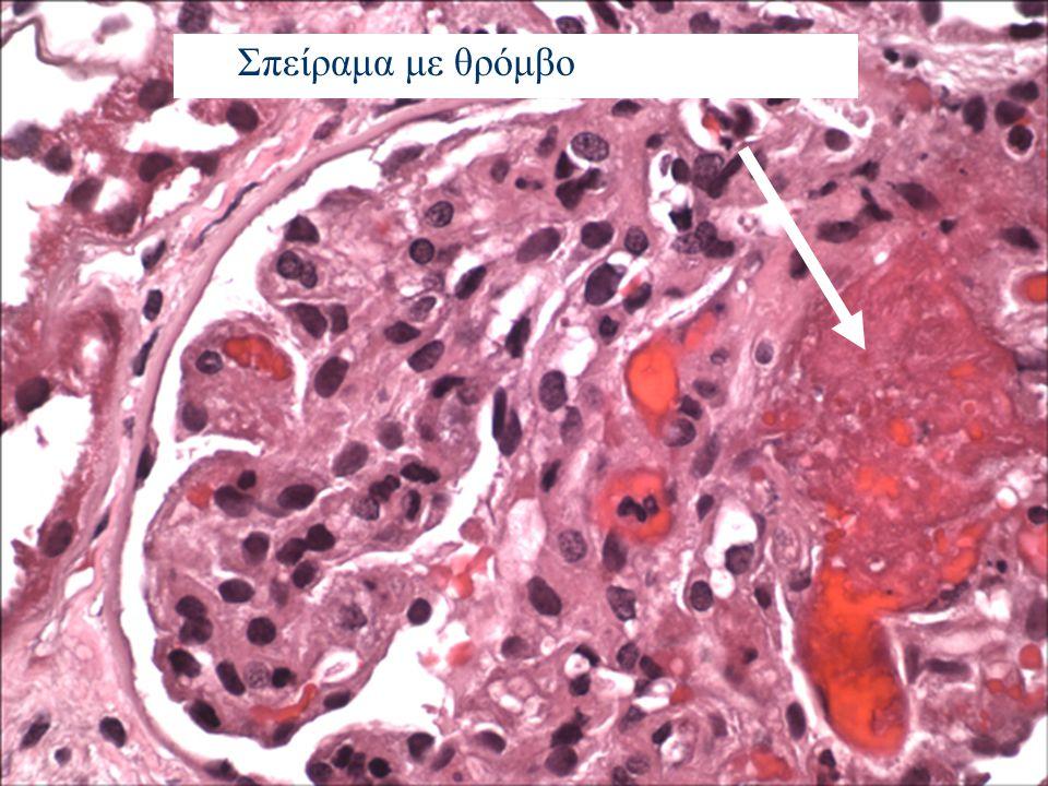 Μικροαγγειοπαθητική αιμολυτική αναιμία Θρομβοπενία Οξεία νεφρική ανεπάρκεια Νευρολογική σημειολογία Πυρετός Κλινικο-εργαστηριακή εικόνα ΤΤΡ- HUS