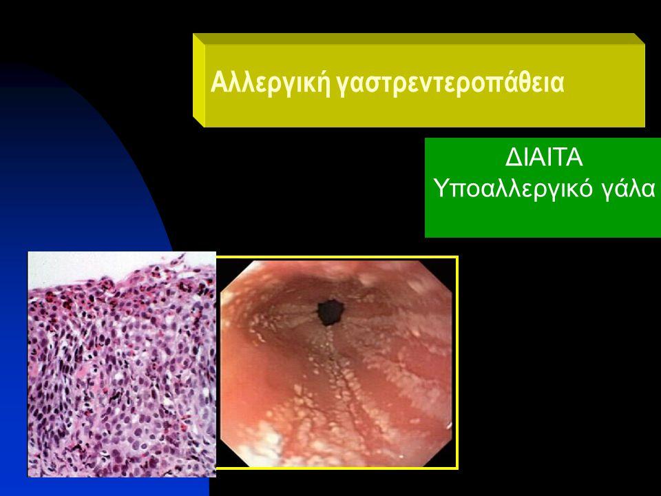 Αλλεργική γαστρεντεροπάθεια ΔΙΑΙΤΑ Υποαλλεργικό γάλα