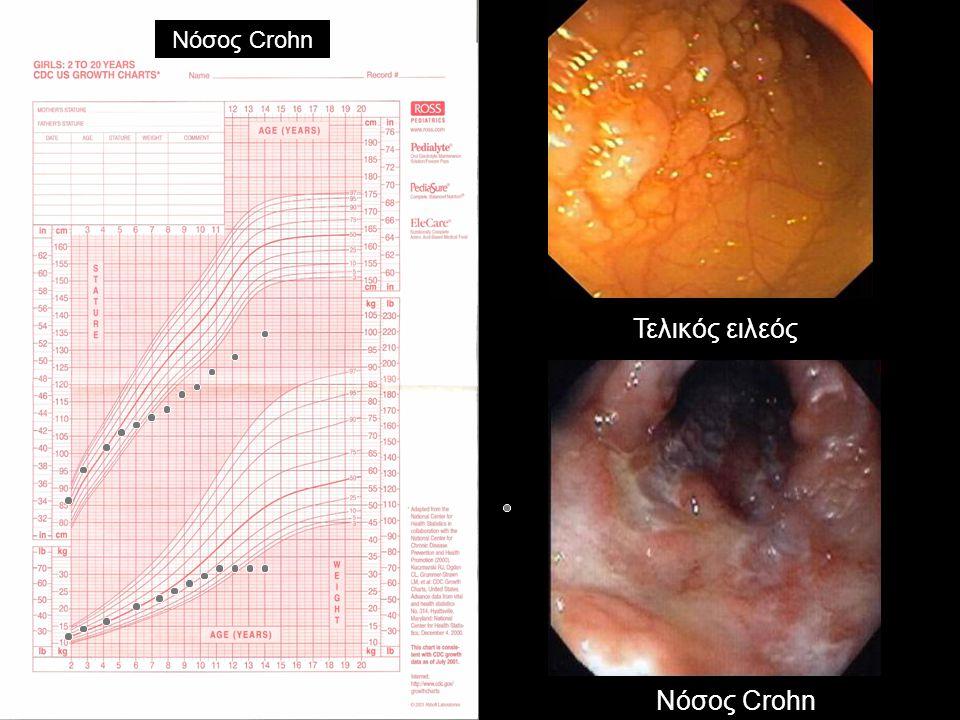 Νόσος Crohn Τελικός ειλεός