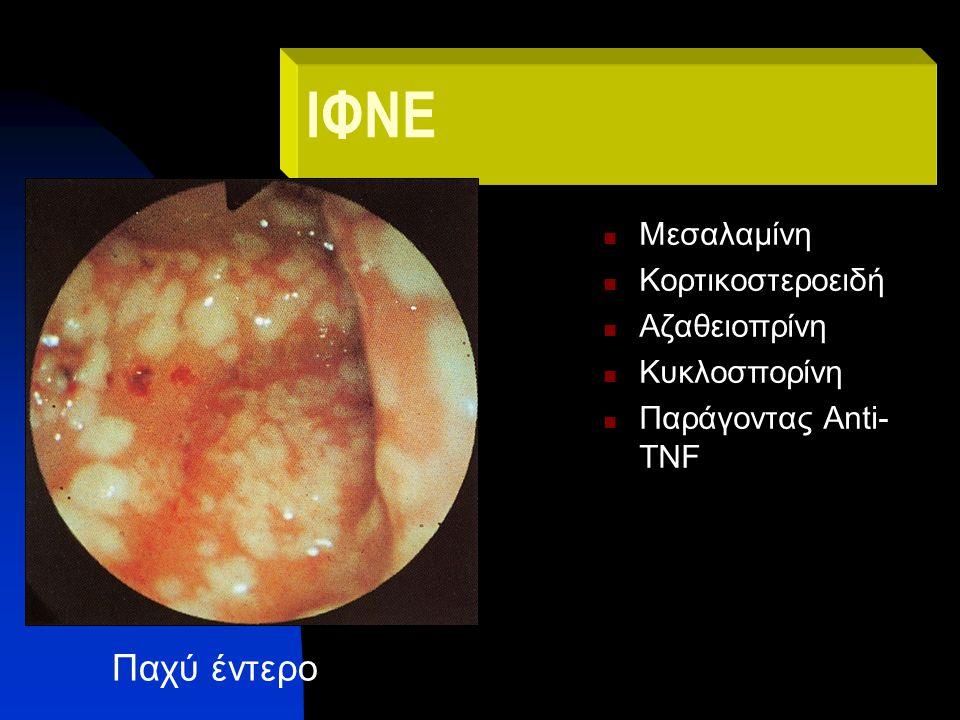 ΙΦΝΕ Μεσαλαμίνη Κορτικοστεροειδή Αζαθειοπρίνη Κυκλοσπορίνη Παράγοντας Anti- TNF Παχύ έντερο