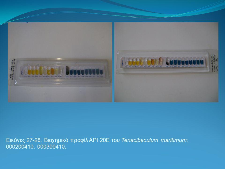 Εικόνες 27-28. Βιοχημικό προφίλ API 20E του Tenacibaculum maritimum: 000200410. 000300410.