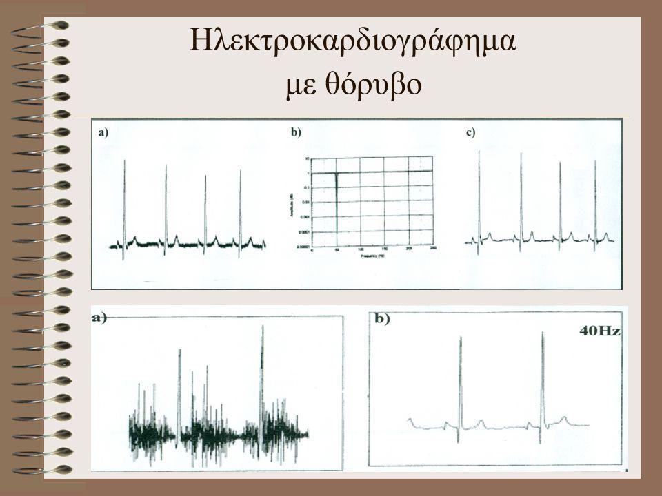 Ηλεκτροκαρδιογράφημα με θόρυβο