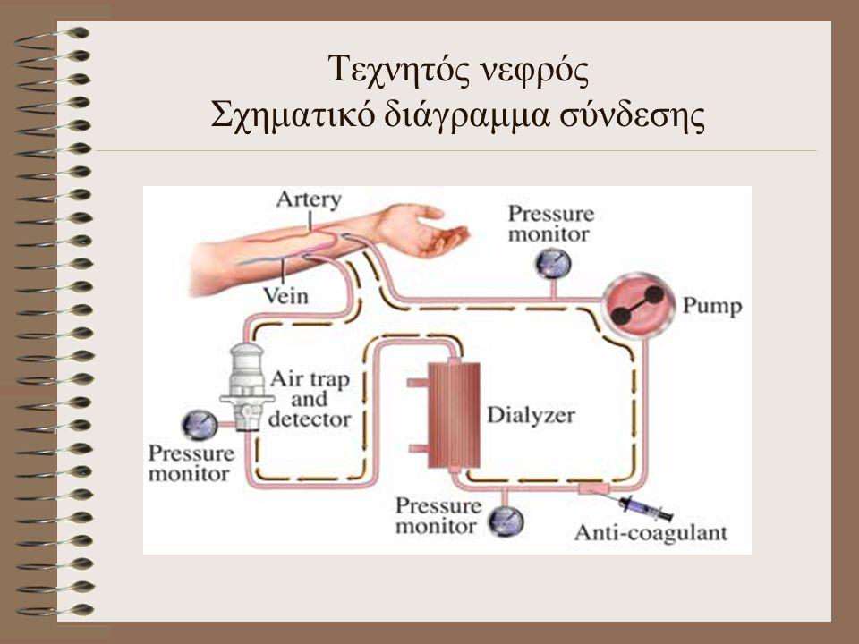 Τεχνητός νεφρός Σχηματικό διάγραμμα σύνδεσης