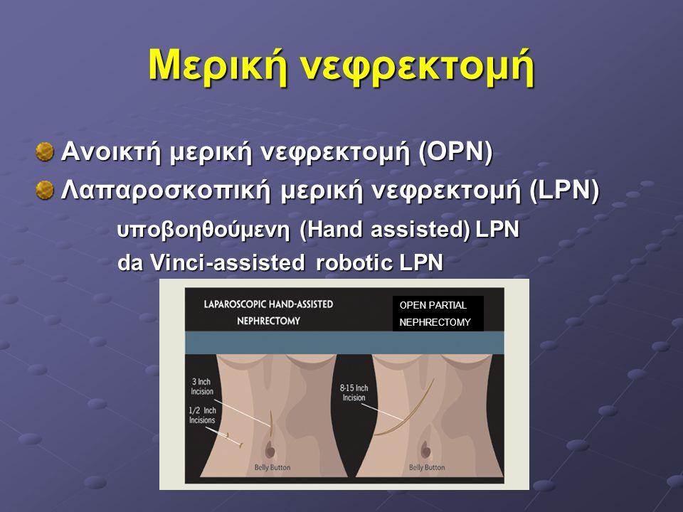 Μερική νεφρεκτομή Ανοικτή μερική νεφρεκτομή (OPN) Λαπαροσκοπική μερική νεφρεκτομή (LPN) υποβοηθούμενη (Hand assisted) LPN υποβοηθούμενη (Hand assisted
