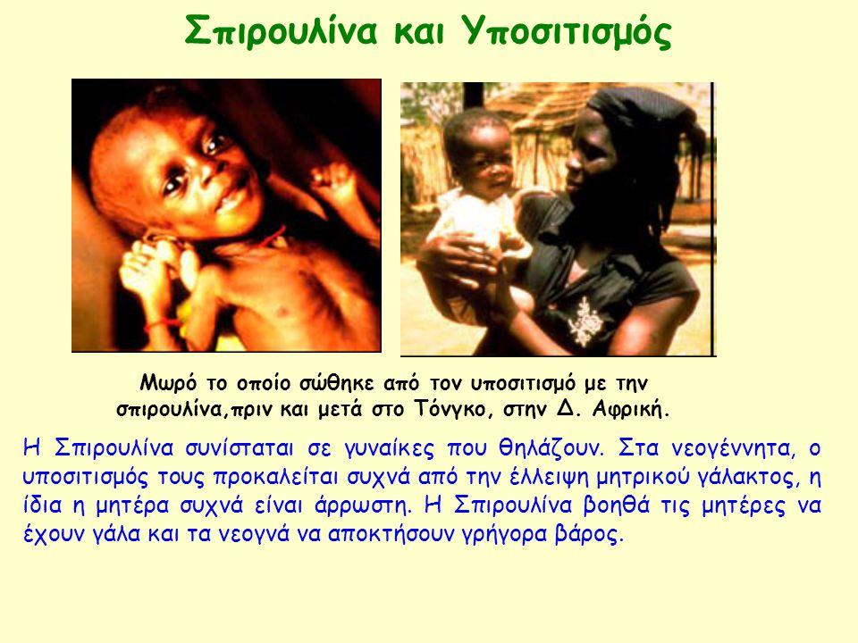 Μωρό το οποίο σώθηκε από τον υποσιτισμό με την σπιρουλίνα,πριν και μετά στο Τόνγκο, στην Δ. Αφρική. Η Σπιρουλίνα συνίσταται σε γυναίκες που θηλάζουν.