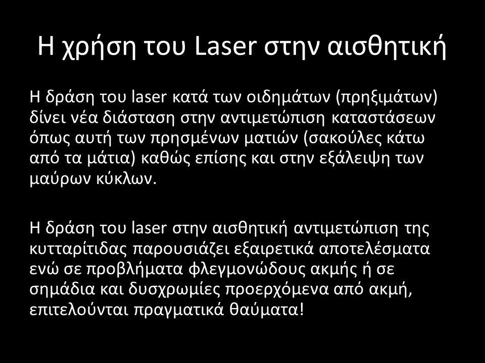 H χρήση του Laser στην αισθητική Η δράση του laser κατά των οιδημάτων (πρηξιμάτων) δίνει νέα διάσταση στην αντιμετώπιση καταστάσεων όπως αυτή των πρησ