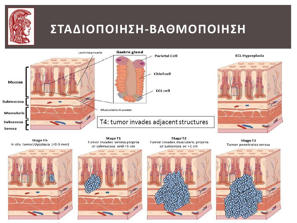 ΣΤΑΔΙΟΠΟΙΗΣΗ-ΒΑΘΜΟΠΟΙΗΣΗ T4: tumor invades adjacent structures
