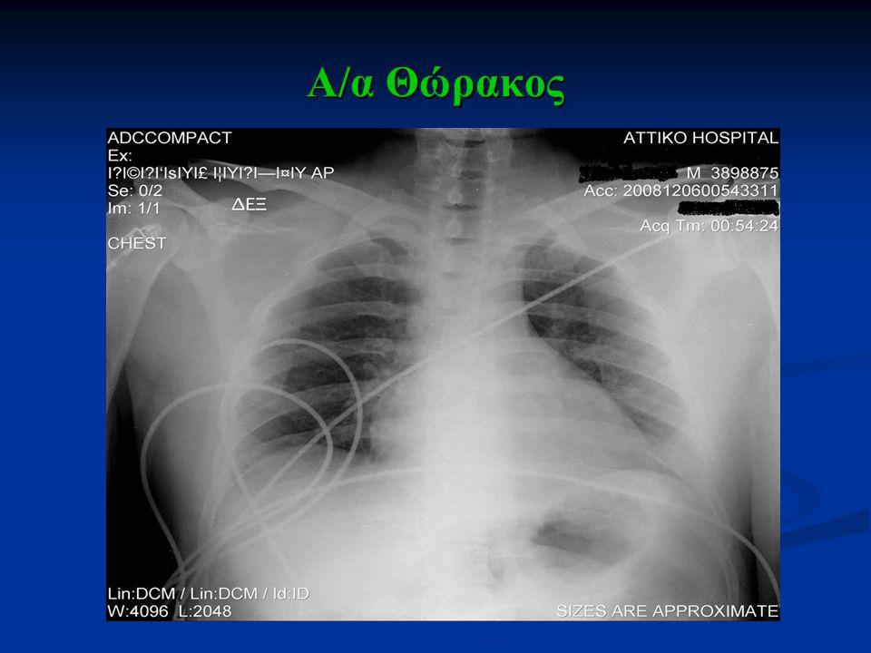 ΑΝΟΣΟΛΟΓΙΚΟΣ ΚΑΙ ΟΡΟΛΟΓΙΚΟΣ ΕΛΕΓΧΟΣ I Adenovirus IgG(+), ΙgM(-) Ab Respiratory Sync IgG(+), IgM (-) -HSV-1, HSV-2 IgG(+), ΙgM(-) -HIV 1,2 (-) -Coxsackie (B1, B2, B3, B4, B5) IgG(+), ΙgM(-) -Echo IgG(+), ΙgM(-) -CMV IgG(+), ΙgM(-) -Hπατίτιδα Β, C (-) -Enterovirus (-) IgG(+), ΙgM(-) -Epstein-Barr (-) IgG(+), ΙgM(-) -Γρίπης Α και Β και Παραγρίππης IgG(+), ΙgM(-) -Parvovirus-B19 IgG(+), ΙgM(-) Ab Βρουκέλλας (-) Ab Coxiella Β΄ φάσης (-) Ab Legionella (-) PRP (-), Rose Bengal (-) Ab Toxoplasma IgG (+), IgM (-) Ab Rubella IgG (+), IgM (-)