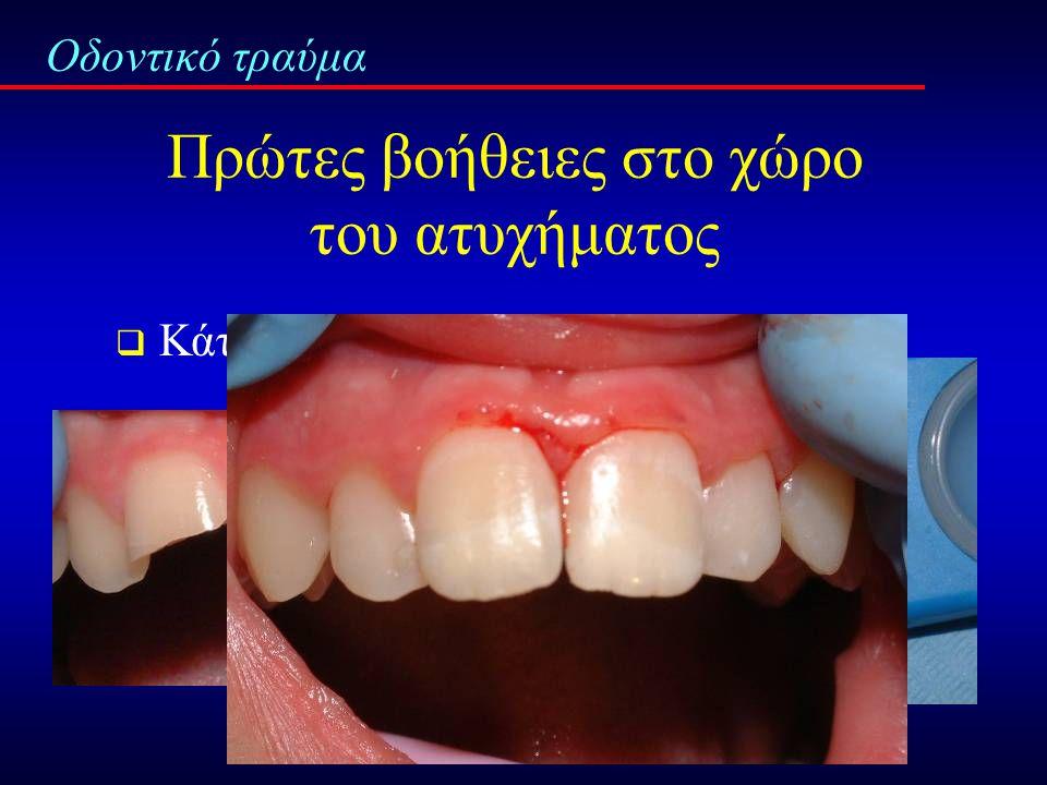 Οδοντικό τραύμα  Εκφόμφωση δοντιού
