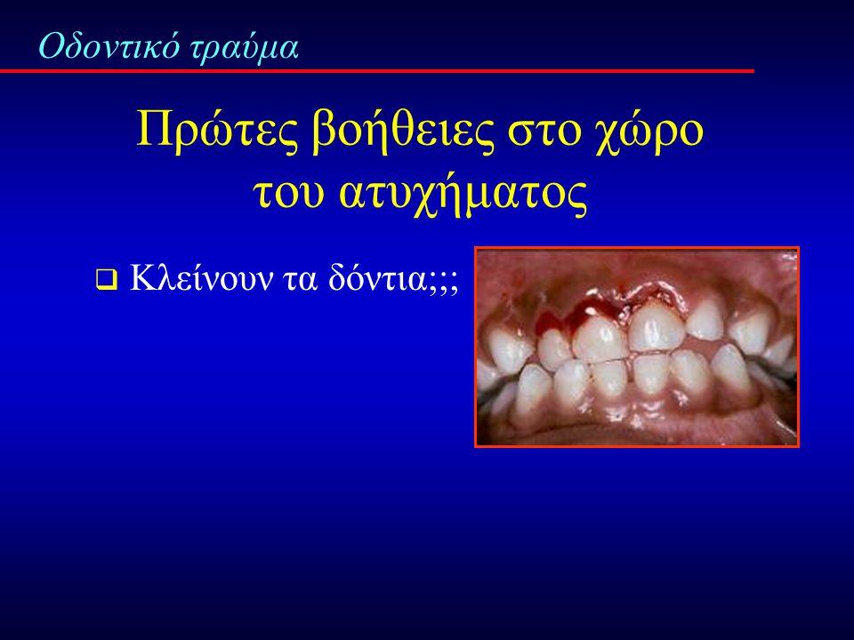 Πρωτόκολλο αντιμετώπισης οδοντικού τραύματος Οδοντικό τραύμα ;;;; Άμεση αντιμετώπιση ;;;;  Πρώτες βοήθειες στο χώρο του ατυχήματος  Τηλεφωνική επικοινωνία με οδοντίατρο