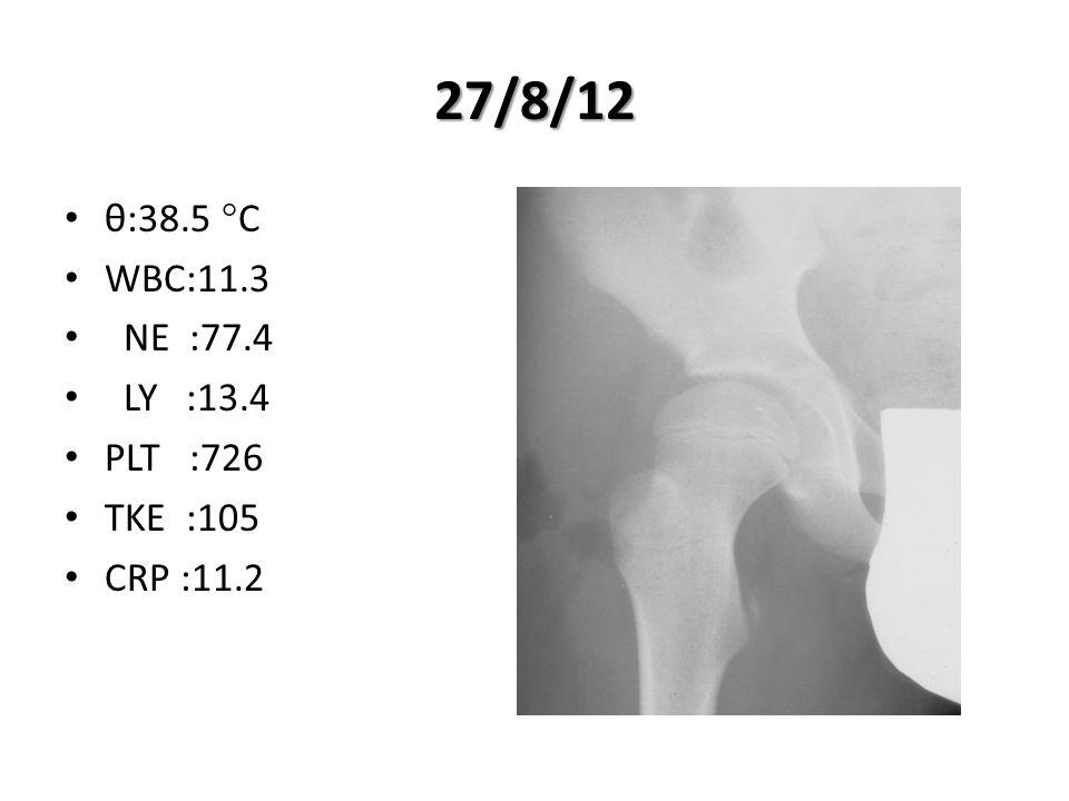 27/8/12 θ:38.5 °C WBC:11.3 NE :77.4 LY :13.4 PLT :726 ΤΚΕ :105 CRP :11.2