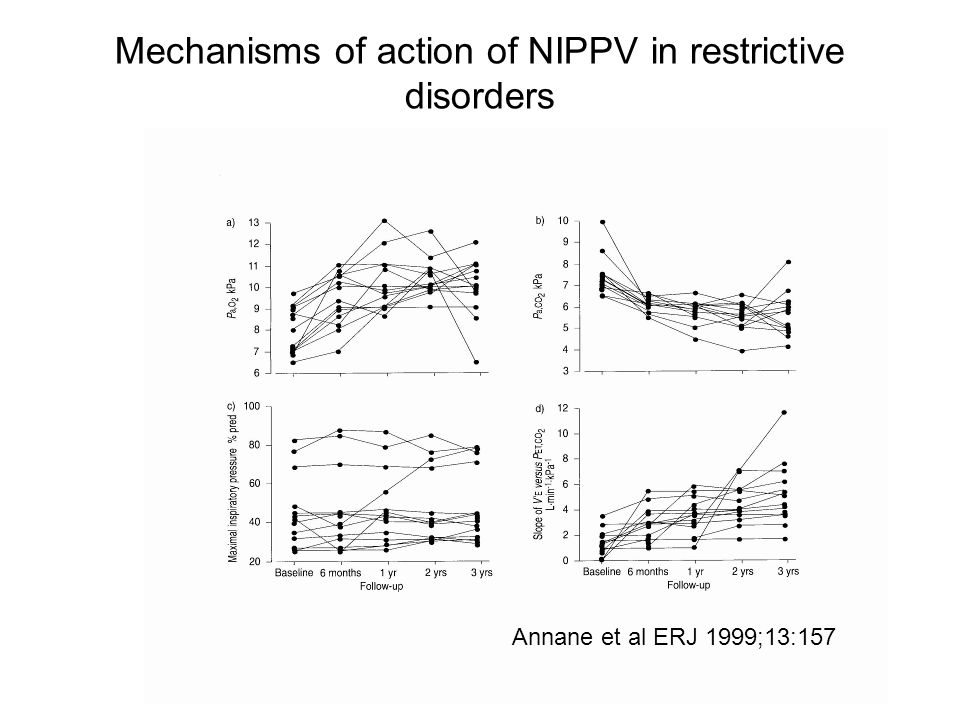 Mechanisms of action of NIPPV in restrictive disorders Annane et al ERJ 1999;13:157