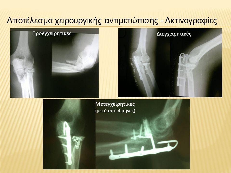 Αποτέλεσμα χειρουργικής αντιμετώπισης - Ακτινογραφίες Προεγχειρητικές Μετεγχειρητικές (μετά από 4 μήνες) Διεγχειρητικές