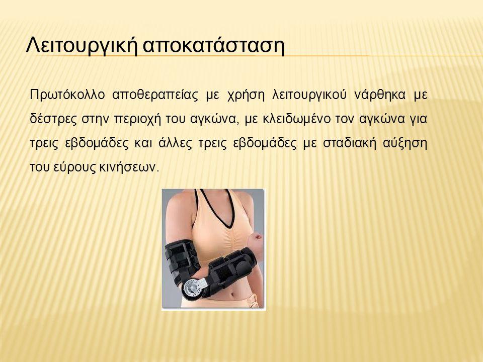 Λειτουργική αποκατάσταση Πρωτόκολλο αποθεραπείας με χρήση λειτουργικού νάρθηκα με δέστρες στην περιοχή του αγκώνα, με κλειδωμένο τον αγκώνα για τρεις