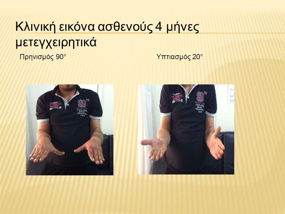 Κλινική εικόνα ασθενούς 4 μήνες μετεγχειρητικά Πρηνισμός 90°Υπτιασμός 20°