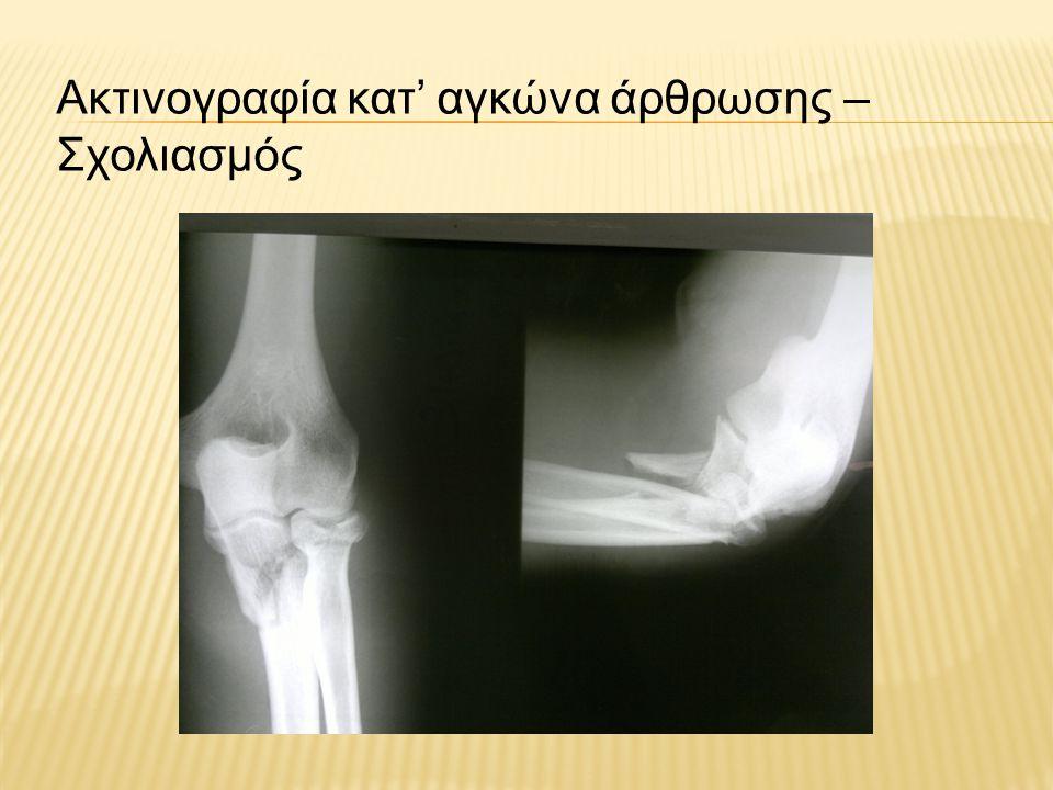 Λειτουργική αποκατάσταση Πρωτόκολλο αποθεραπείας με χρήση λειτουργικού νάρθηκα με δέστρες στην περιοχή του αγκώνα, με κλειδωμένο τον αγκώνα για τρεις εβδομάδες και άλλες τρεις εβδομάδες με σταδιακή αύξηση του εύρους κινήσεων.