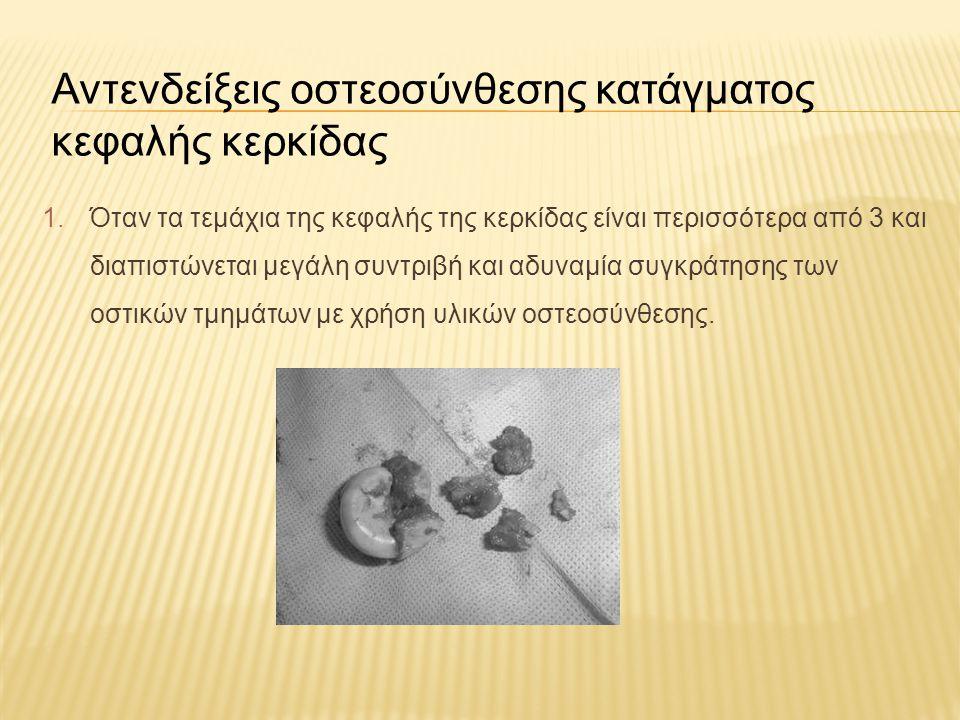 Αντενδείξεις οστεοσύνθεσης κατάγματος κεφαλής κερκίδας 1.Όταν τα τεμάχια της κεφαλής της κερκίδας είναι περισσότερα από 3 και διαπιστώνεται μεγάλη συν