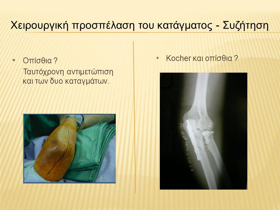 Χειρουργική προσπέλαση του κατάγματος Μειονέκτημα της οπίσθιας προσπέλασης του αγκώνα: Διατομή του αγκωνιαίου μυός, ο οποίος είναι σημαντικό στοιχείο του έξω θυλακοσυνδεσμικού συστήματος και τυχόν διατάραξη της ανατομίας της περιοχής, προδιαθέτει σε αστάθεια της άρθρωσης του αγκώνα.