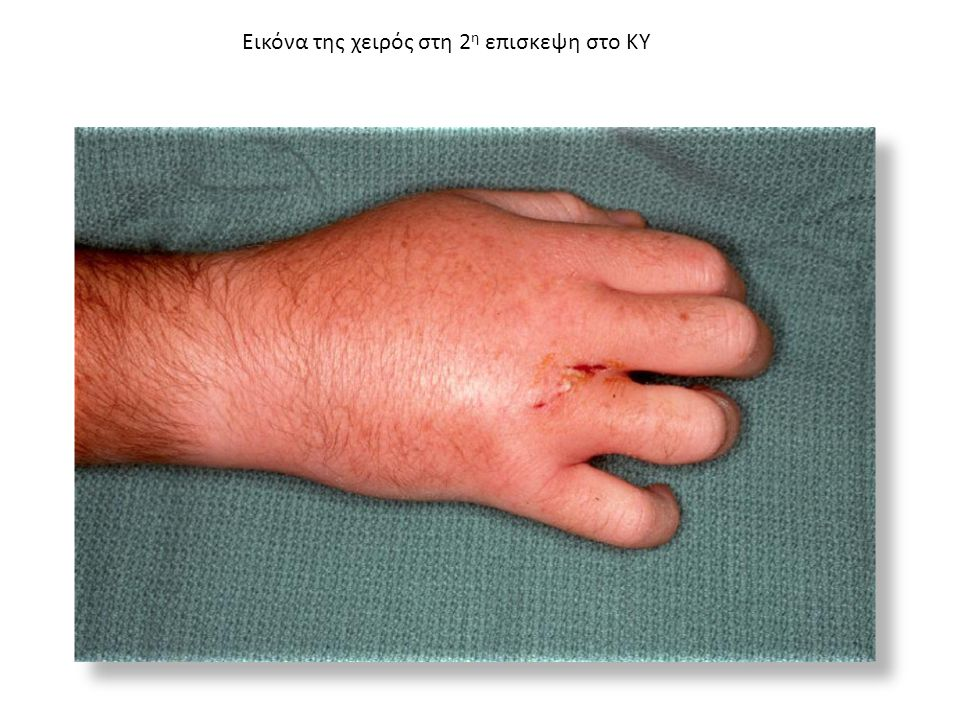 Προ διμήνου παρουσιάσε ερυθρότητα, οίδημα και πόνο,πηρε θεραπεία με σιπροφλοξασίνη χωρίς βελτίωση, Τώρα προσέρχεται στο ΚΥ λόγω ελκωτικής βάβης 4 ου και 5 ου δακτύλου