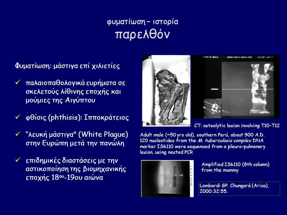 φυματίωση – ιστορία παρελθόν Φυματίωση: μάστιγα επί χιλιετίες παλαιοπαθολογικά ευρήματα σε σκελετούς λίθινης εποχής και μούμιες της Αιγύπτου φθίσις (phthisis): Ιπποκράτειος λευκή μάστιγα (White Plague) στην Ευρώπη μετά την πανώλη επιδημικές διαστάσεις με την αστικοποίηση της βιομηχανικής εποχής 18 ου -19ου αιώνα CT: osteolytic lesion involving T10-T12 Adult male (~50 yrs old), southern Perú, about 900 A.D.