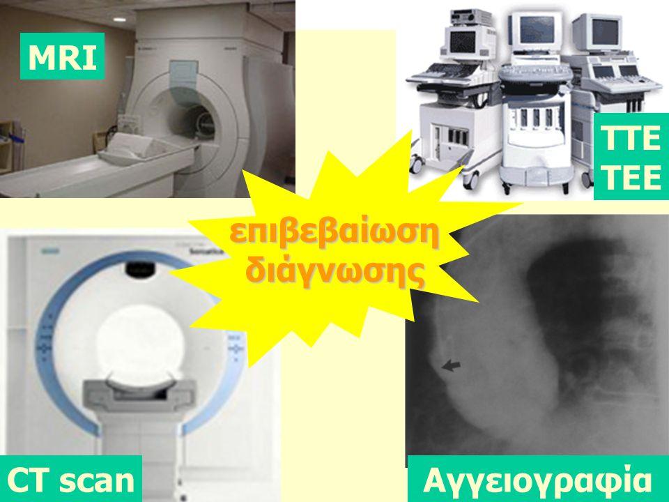 επιβεβαίωσηδιάγνωσης ΤΤΕ ΤΕΕ MRI CT scanAγγειογραφία