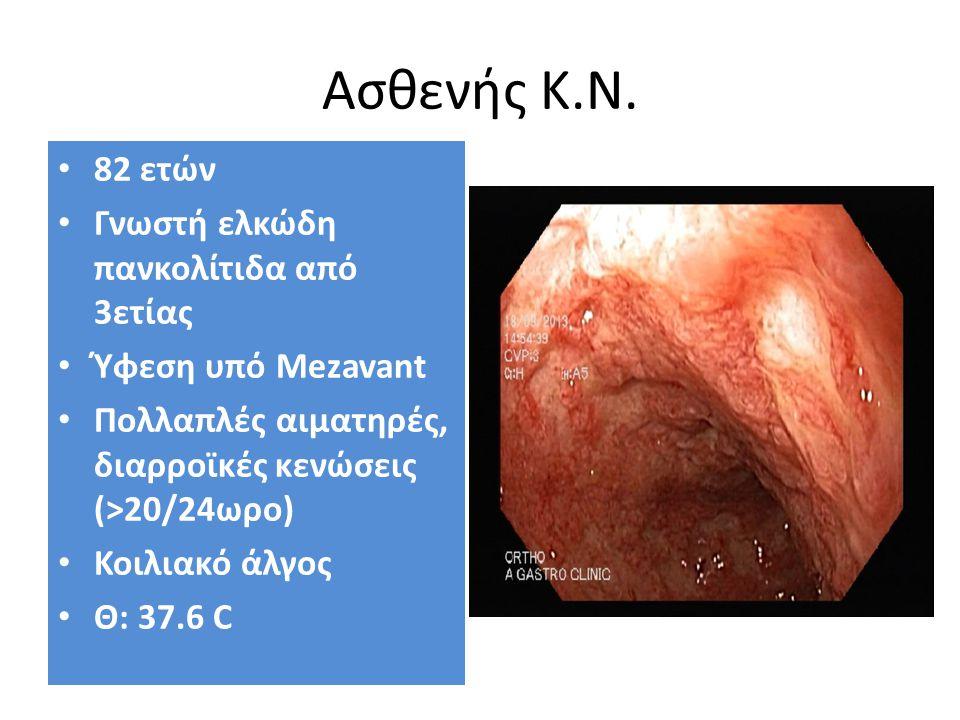Ασθενής Κ.Ν. 82 ετών Γνωστή ελκώδη πανκολίτιδα από 3ετίας Ύφεση υπό Mezavant Πολλαπλές αιματηρές, διαρροϊκές κενώσεις (>20/24ωρο) Κοιλιακό άλγος Θ: 37
