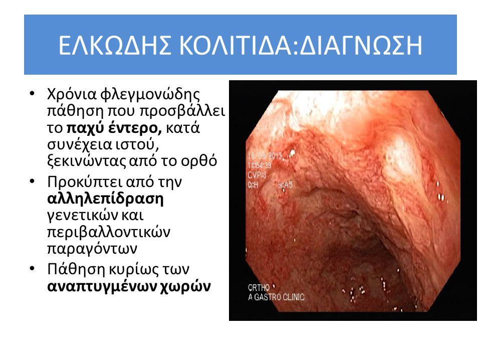 Συμπεράσματα Θεραπείας βαριάς ελκώδους κολίτιδας Όλοι οι ασθενείς και αφού επιβεβαιωθεί η διάγνωση και αποκλεισθεί το ενδεχόμενο λοίμωξης, θα πρέπει να λαμβάνουν ενδοφλέβια κορτιζόνη και στη συνέχεια να αξιολογούνται για το πιθανή λήψη «θεραπείας διάσωσης» (rescue therapy) με ινφλίξιμαμπ ή κυκλοσπορίνη (3 η ημέρα).