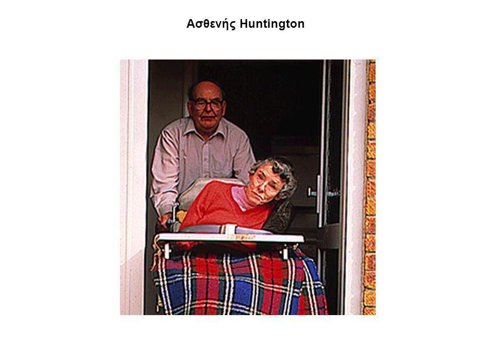 Ασθενής Ηuntington
