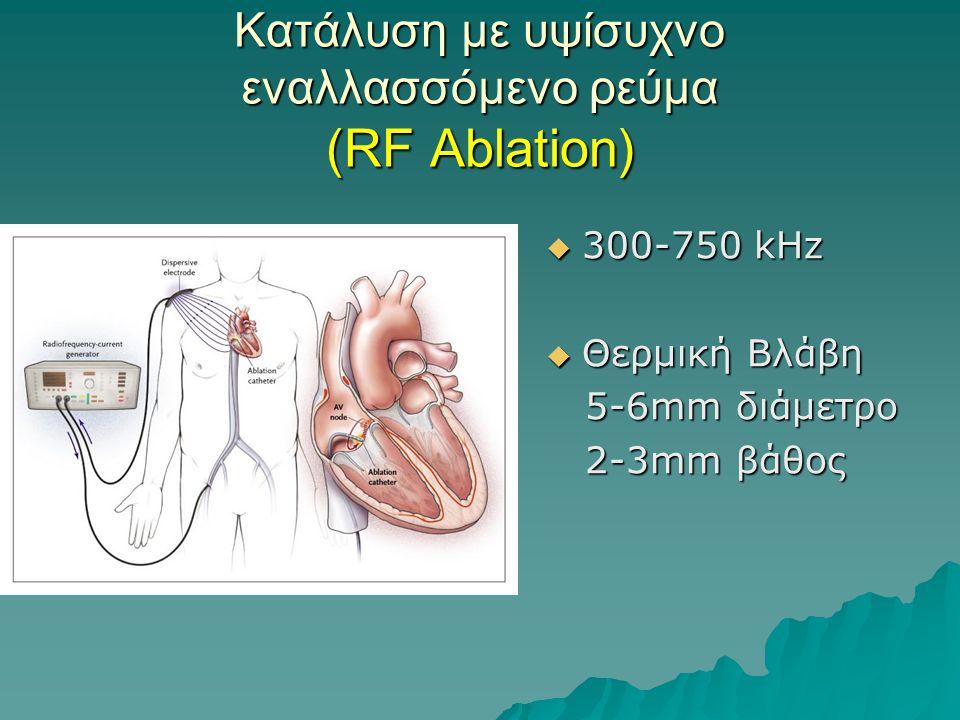 Κατάλυση με υψίσυχνο εναλλασσόμενο ρεύμα (RF Ablation)  300-750 kHz  Θερμική Βλάβη 5-6mm διάμετρο 5-6mm διάμετρο 2-3mm βάθος 2-3mm βάθος