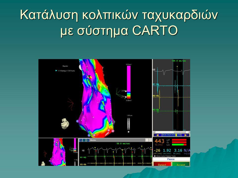 Κατάλυση κολπικών ταχυκαρδιών με σύστημα CARTO