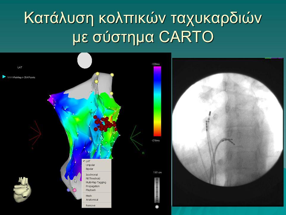 Κατάλυση τυπικού κολπικού πτερυγισμού με σύστημα CARTO
