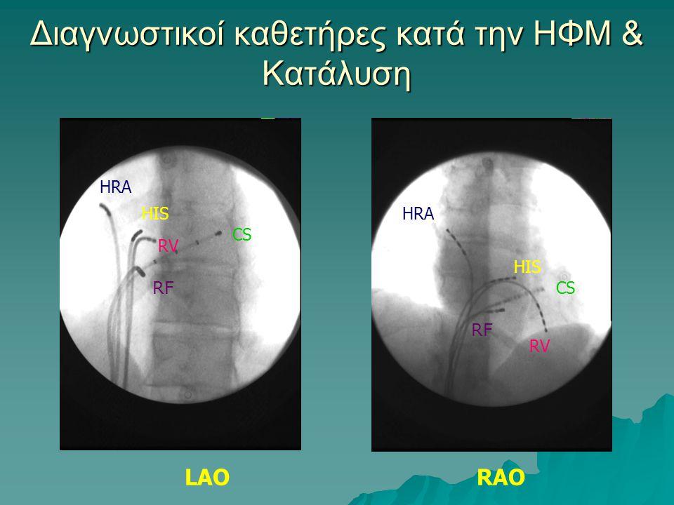 Διαγνωστικοί καθετήρες κατά την ΗΦΜ & Κατάλυση LAORAO HRA HIS RV CS RF HRA HIS RV CS RF