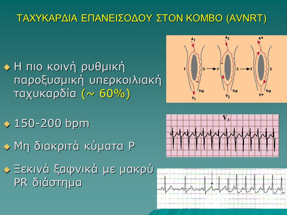 ΤΑΧΥΚΑΡΔΙΑ ΕΠΑΝΕΙΣΟΔΟΥ ΣΤΟΝ ΚΟΜΒΟ (AVNRT)  Η πιο κοινή ρυθμική παροξυσμική υπερκοιλιακή ταχυκαρδία (~ 60%)  150-200 bpm  Μη διακριτά κύματα P  Ξεκινά ξαφνικά με μακρύ PR διάστημα